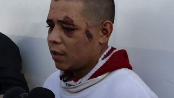 Un hombre mata a su amigo en Ciudad Juárez, le corta el pene y se lo da de comer a un perro