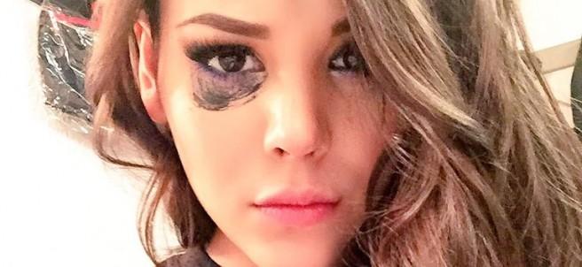 Danna Paola y su cirugía de nariz